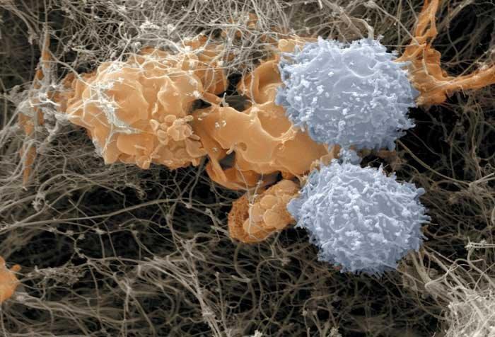 whitebloodcellsattackingcancercells